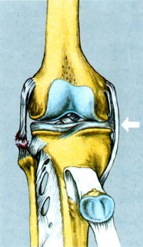 Συνδεσμικές κακώσεις έξω πλαγίου γόνατος