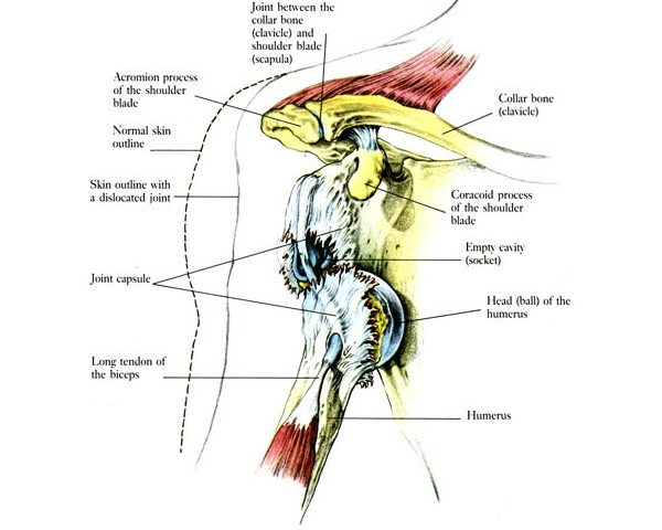 Έξάρθρωση του ώμου