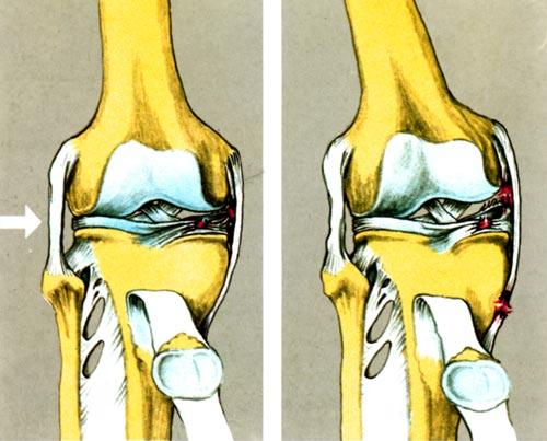 Συνδεσμικές κακώσεις έσω πλαγίου γόνατος